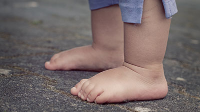Childrens Foot Care Melbourne | Podiatry Melbourne