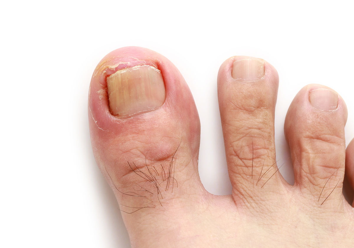 Ingrown Toenails Melbourne | Taylors Lakes | Podiatry Melbourne