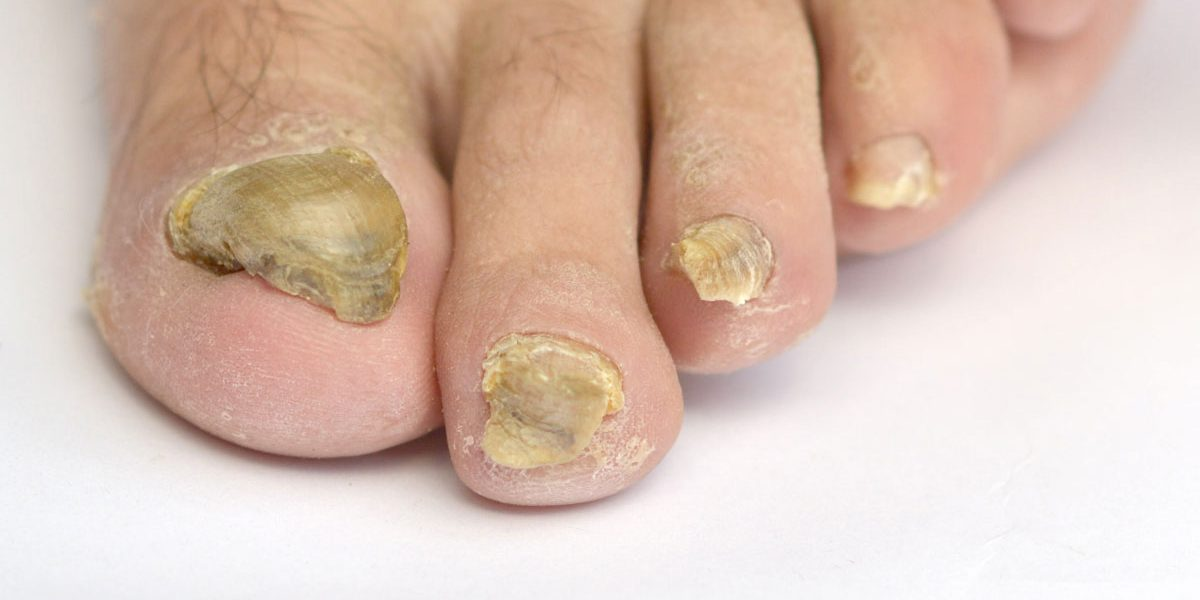 Fungal Nail Treatment Melbourne | Taylors Lakes Podiatry Clinic